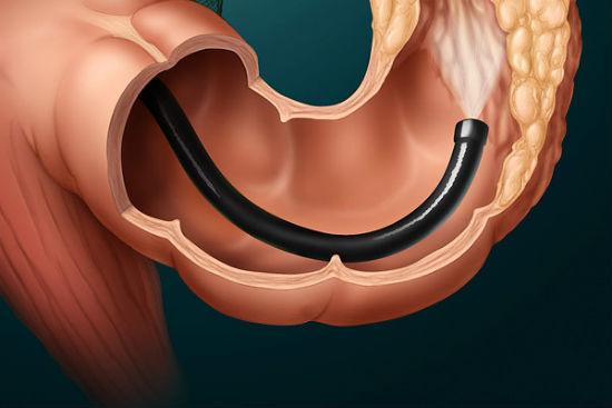 Как проверить кишечник без колоноскопии - альтернативные ...
