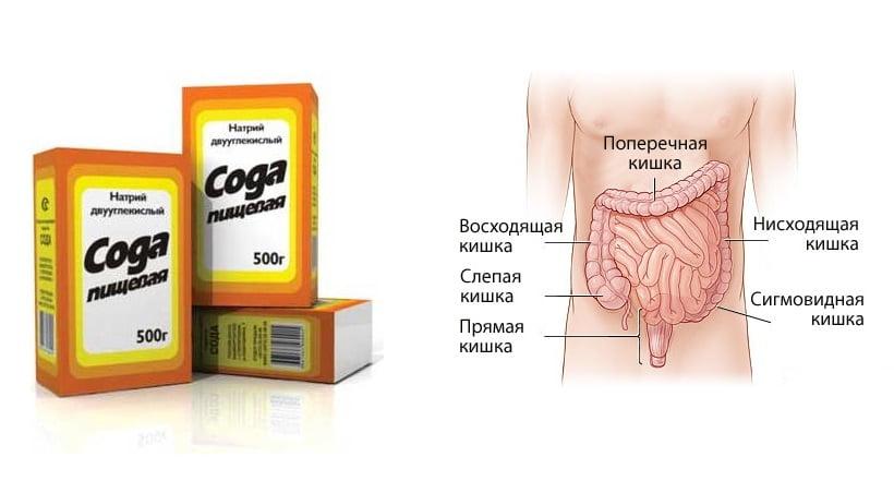 сода для кишечника